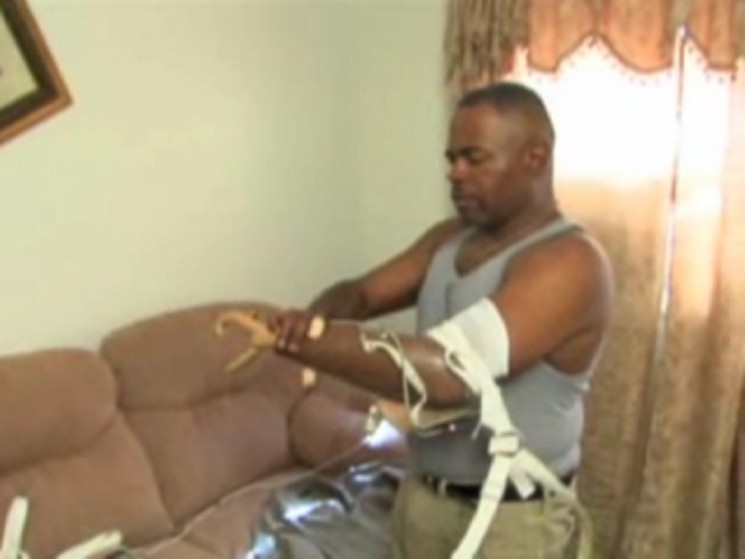 Accident victim with prosthetic arm – day in the life video