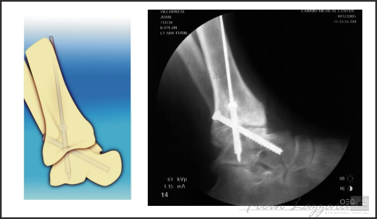 Mid-Range: Ankle illustration showing injury and surgical hardware per medical films