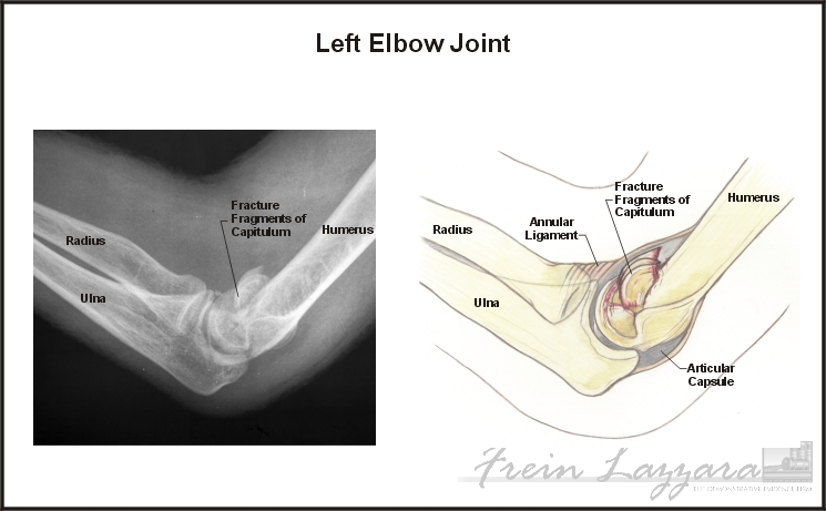 Low-Range: elbow illustrations showing injury and medical hardware per films